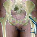 Fractured Femur by Du Cane Medical Imaging Ltd