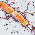 Gut Bacterium Reproducing, Tem by Hazel Appleton, Centre For Infectionshealth Protection Agency