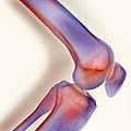 Healthy Knee, X-ray by