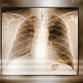 Heart And Lungs, X-ray by Miriam Maslo