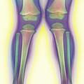 Knock-knee, X-ray by Cnri