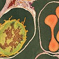 Lung Alveoli And Blood Cells, Tem by Thomas Deerinck, Ncmir