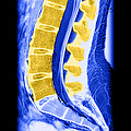 Normal Lumbar Spine by Medical Body Scans
