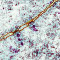 Ribosomes, Tem by Cnri