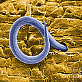 Root Knot Nematode Sem by Science Source