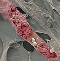 Ruptured Venule, Sem by Steve Gschmeissner