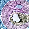 Schistosoma Mansoni by M. I. Walker