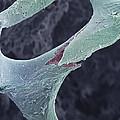 Osteoporotic Bone, Sem by Steve Gschmeissner