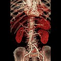 Aortic Aneurysm Ct Scan by Zephyr
