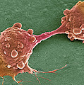 Cancer Cell Dividing, Sem by Steve Gschmeissner