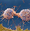 Coloured Sem Of Cervical Cancer Cells Dividing by Steve Gschmeissner