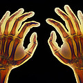 Coloured X-ray Of Healthy Human Hands by