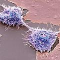 Dividing Hela Cells, Sem by Steve Gschmeissner