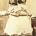 2 Headed Girl Millie-chrissie by Photo Researchers