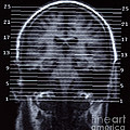 Human Brain by Ted Kinsman