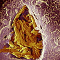 Macrophage Engulfing Tuberculosis Vaccine by