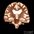 Mri Of Brain With Alzheimers Disease by Medical Body Scans
