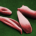 Sickle Red Blood Cells by Omikron