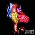 Color Enhanced 3d Cta Of Heart by Medical Body Scans