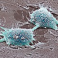 Dividing Cancer Cell, Sem by Steve Gschmeissner