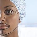 Facelift Surgery Markings by Adam Gault