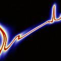 Heart Disease: Artwork Of An Irregular Ecg Trace by Mehau Kulyk