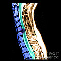Herniated Disc In Cervical Spine by Medical Body Scans