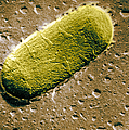 Tuberculosis Bacillum by Science Source