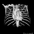 3d Cta Of Heart And Chest by Medical Body Scans