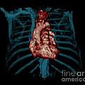 3d Ct Reconstruction Of Heart by Medical Body Scans