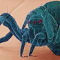 Baby Spider, Sem by Steve Gschmeissner