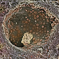 Breast Cancer, Sem by Steve Gschmeissner