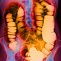 Coloured X-ray Of The Colon After A Barium Enema by