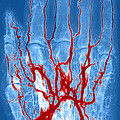 Hand Arteriogram by Science Source