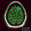 Mri Of Normal Brain by Science Source