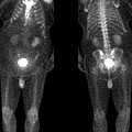 Bone Scan by Medical Body Scans