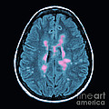 Mri Of Multiple Sclerosis by Medical Body Scans