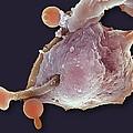 Neutrophil Engulfing Thrush Fungus, Sem by