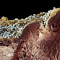 Pyoderma Skin Disease, Sem by Steve Gschmeissner