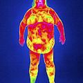 Obese Woman, Thermogram by Tony Mcconnell
