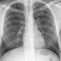 Tuberculosis, X-ray by Du Cane Medical Imaging Ltd