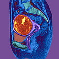 Uterine Fibroid, Mri Scan by Du Cane Medical Imaging Ltd
