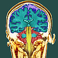 Healthy Brain, Mri Scan by