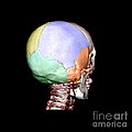 Human Skull by Medical Body Scans
