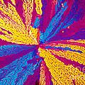 Acetylcholine by Michael W. Davidson