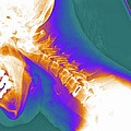 Artificial Cervical Disc, X-ray by Pasieka