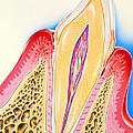 Artwork Of Tooth Showing Periodontal Disease by John Bavosi