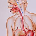 Artwork Of Vomiting Mechanism In Human Body by John Bavosi