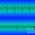 Atrial Fibrillation & Normal Heart Beat by Science Source