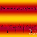 Atrial Flutter & Atrial Fibrillation by Science Source